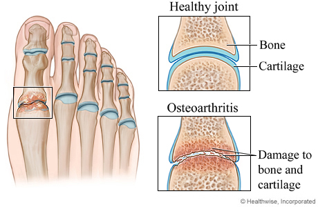 Healthy joint and osteoarthritis of the foot