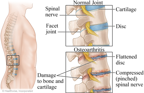 Normal spine and osteoarthritis of the spine