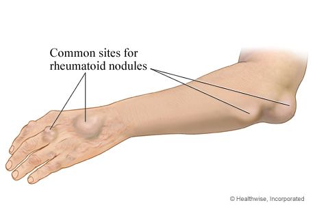 Picture of rheumatoid nodules