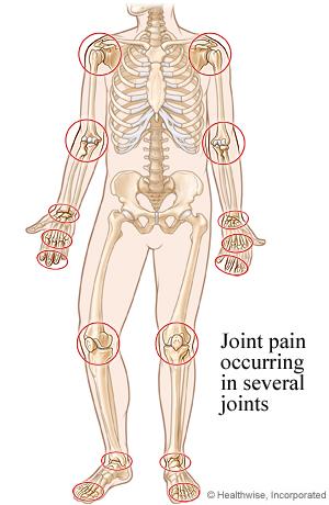 Picture of the common sites for rheumatoid arthritis