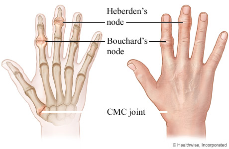 Heberden's and Bouchard's nodes and CMC joint