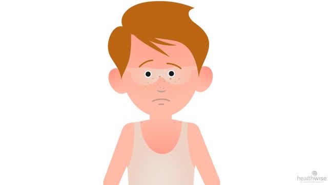 Here's Help: Mild Sunburn in Children