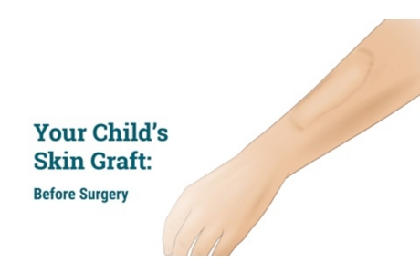 Your Child's Skin Graft: Before Surgery