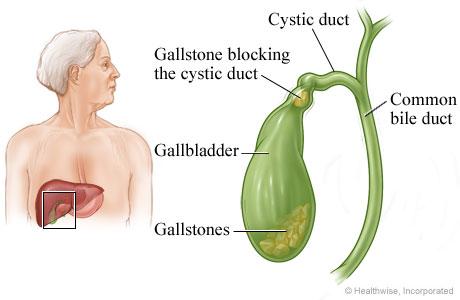 Gallbladder and gallstones