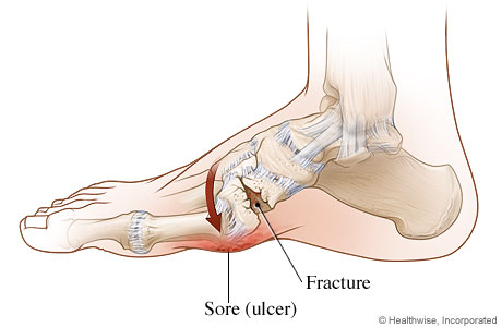 Picture of Charcot foot