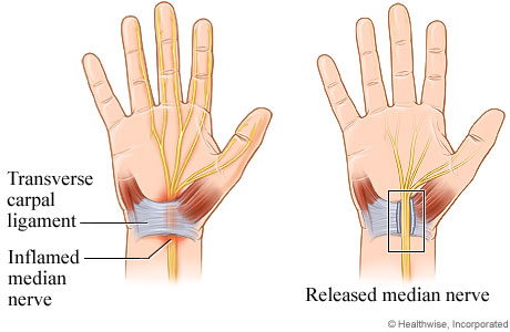 Open carpal tunnel release surgery