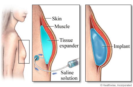 Tissue expander and breast implant after mastectomy
