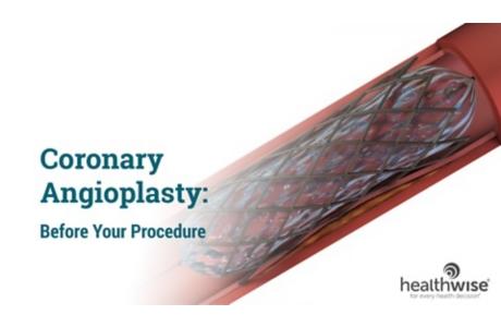 Coronary Angioplasty: Before Your Procedure