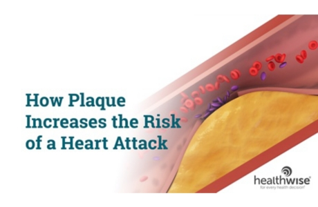 How Plaque Increases the Risk of a Heart Attack