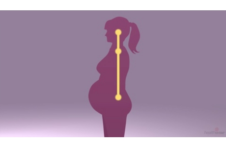 Pregnancy: Dealing With Back Pain