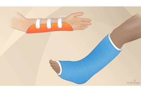 Taking Care of a Cast or Splint