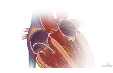 Catheter Ablation for SVT: Before Your Procedure