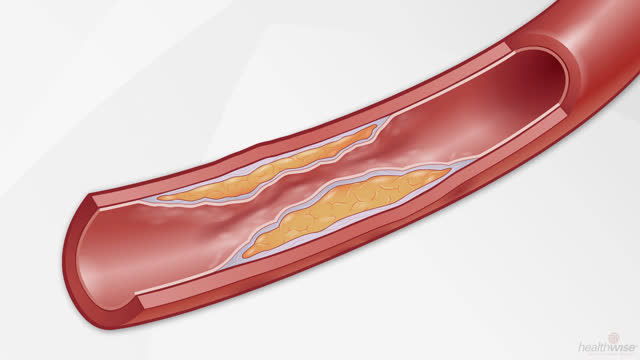 Cholesterol: How It Raises Your Risk