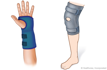 Splint on wrist and splint on knee