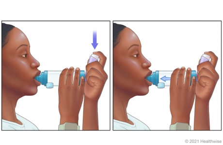 Person pressing down on inhaler to release medicine into spacer, then breathing in.