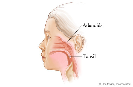 Location of tonsils and adenoids