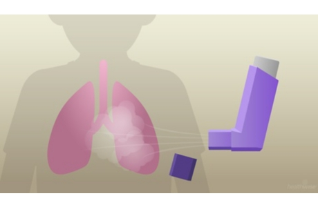 Your Corticosteroid Inhaler: Making It Easier to Breathe