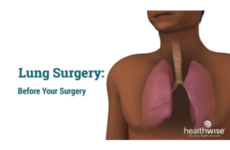 Lung Surgery: Before Your Surgery