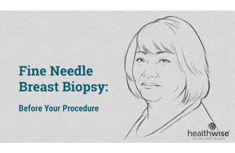 Fine Needle Breast Biopsy: Before Your Procedure