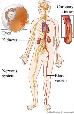 Body areas affected by diabetes