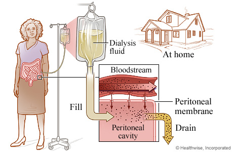 The process of peritoneal dialysis