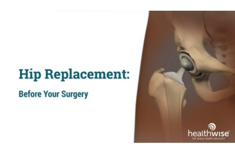 Hip Replacement: Before Your Surgery