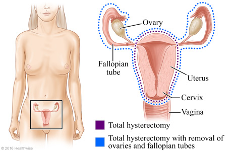 Total hysterectomy and total hysterectomy with removal of ovaries and fallopian tubes