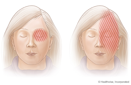 Areas of pain associated with migraine headaches