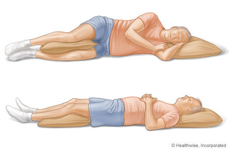 Picture of sleeping positions for people who have low back pain
