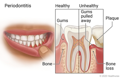 Mouth with plaque on teeth and unhealthy gums, with detail of advanced gum disease showing plaque, gums pulled away, and bone loss.
