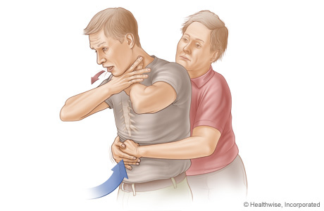 Picture B: Side view of Heimlich maneuver in an adult or child, showing position of hands and direction of thrust
