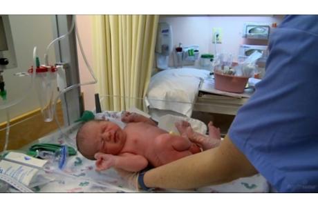 VBAC: Safe Labor After a Cesarean