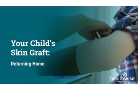 Your Child's Skin Graft: Returning Home