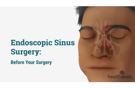 Endoscopic Sinus Surgery: Before Your Surgery