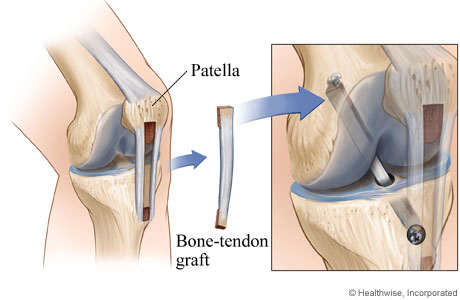 Picture of a bone and knee tissue graft for ACL surgery