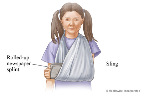 How to use a splint or sling for an injured arm