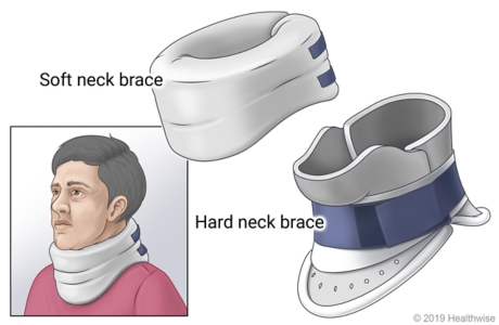 Soft neck brace and hard neck brace, showing person wearing soft neck brace