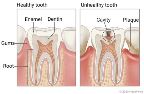 Healthy tooth showing layers of enamel, dentin, and root, and unhealthy tooth with plaque showing cavity affecting layers of tooth