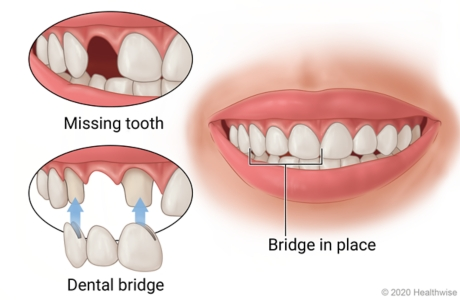 Missing tooth in mouth with teeth on both sides prepped for dental bridge, and then showing bridge in place.