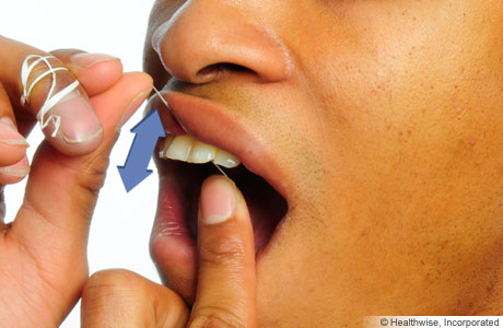 Person flossing, showing floss moving up and down between teeth