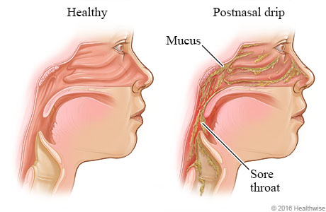 Inside view of head, showing the sinuses with postnasal drip draining into throat
