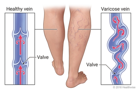 External view of legs with and without varicose veins, with details of healthy vein and twising varicose veins