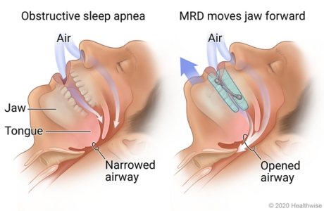 Sleeping person with narrowed airway from sleep apnea, and then using MRD showing jaw moved forward and airway opened