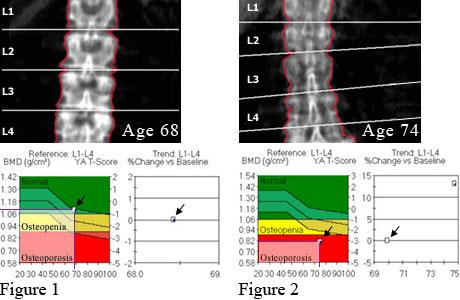 Bone density of spine