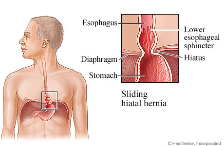 Picture of a sliding hiatal hernia