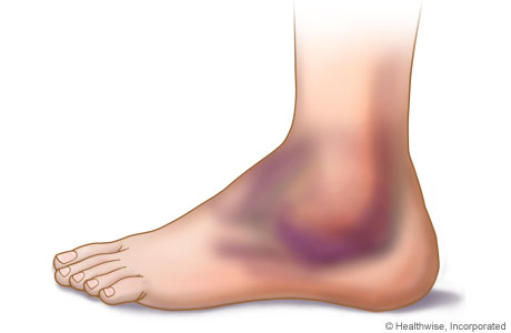 Picture of swelling and bruising of the ankle