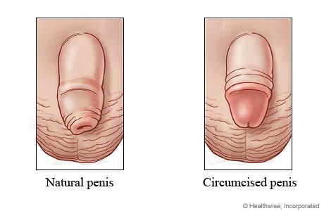 Natural penis and circumcised penis