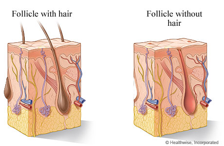 Hair follicle with hair and without hair