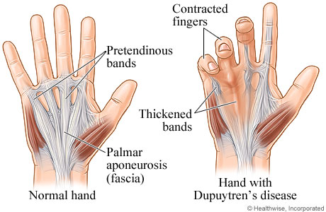Picture of normal hand and hand with Dupuytren's disease