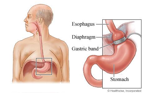 Gastric banding